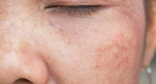 What is laser genesis skin therapy?